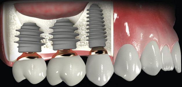 Имплантация на верхней челюсти