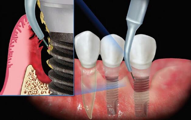 Лечение периимплантита
