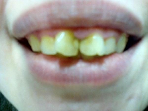 Если нет зубов виниры подойдут
