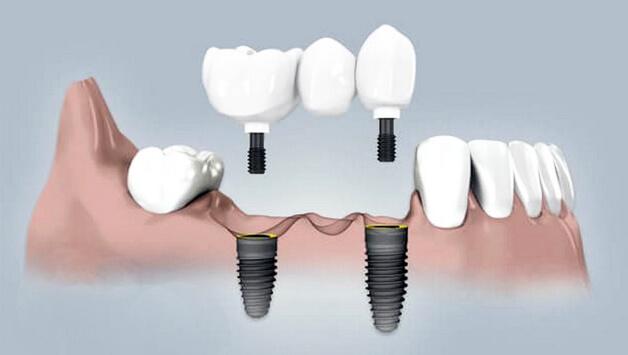 Сколько зубов имплантировать