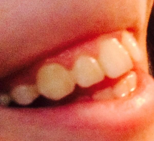 можно носить виниры если нет зубов