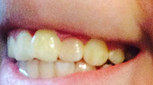 можно виниры одевать на протезированные зубы