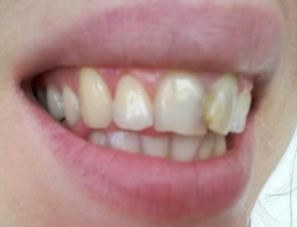 Как выровнять зубы без брекетов, способ выровнять зубы 16