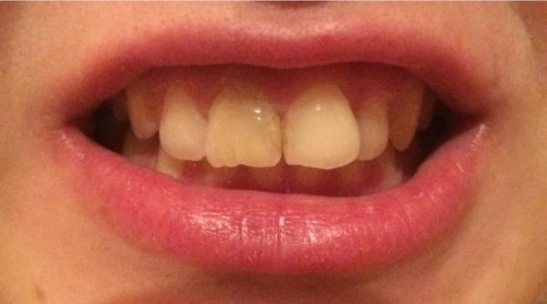 виниры щель между зубами
