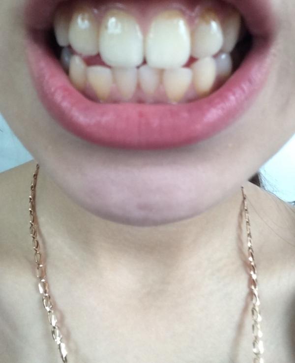 Отбеливание зубов с помощью перекиси водорода