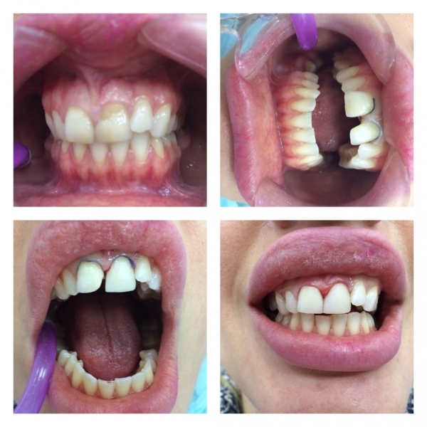 Куда девать удалённые зубы