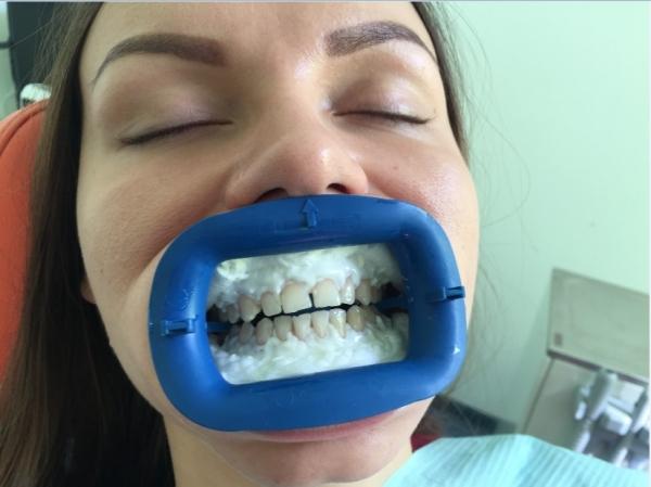 Пожелтели зубы после отбеливания