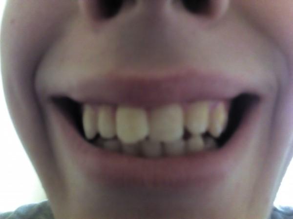 Как выровнять зубы без брекетов, способ выровнять зубы 98