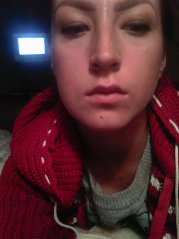 Как убрать опухоль на щеке в домашних условиях быстро
