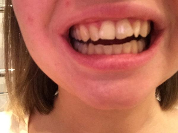 можно ли поставить виниры на нижние зубы