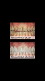 Что можно сделать чтобы зубы были ровными