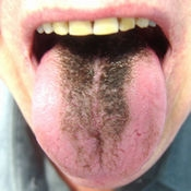 Черный язык
