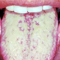 Белый язык - признак болезней