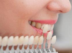 виды виниров на зубы