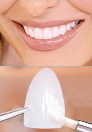 Плюсы и минусы реставрации зубов люминирами