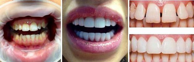 Фото до и после реставрации зубов люминирами