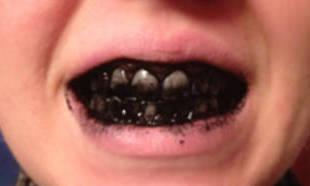 вредно ли отбеливание зубов zoom 4