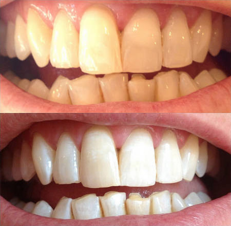 отбеливание зубов light