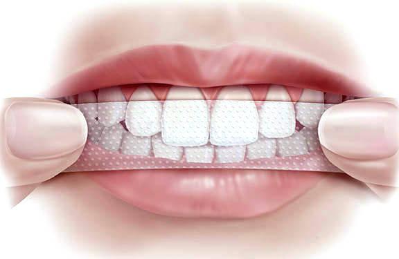 полоски для отбеливания зубов crest отзывы