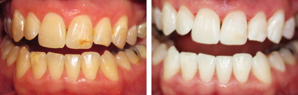 Отбеливание Zoom: фото до и после