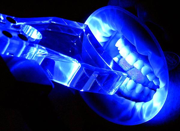 Процедура фотоотбеливания зубов