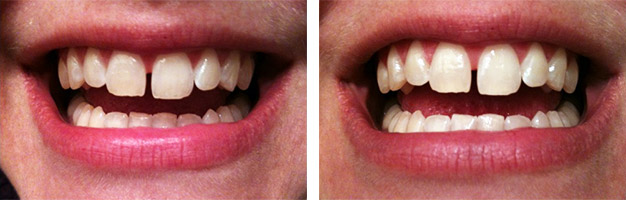 Фото до и после отбеливания полосками Crest