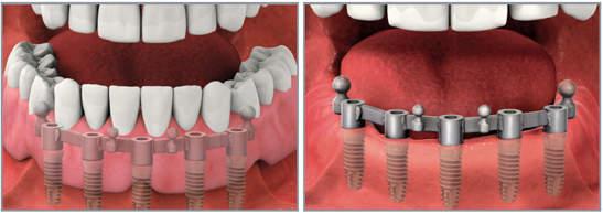 Съемный протез на имплантах с балочным креплением