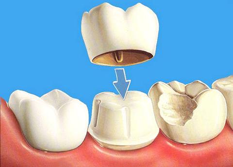 Установка временной коронки на зуб