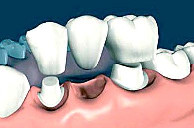 Несъемный мостовидный зубной протез