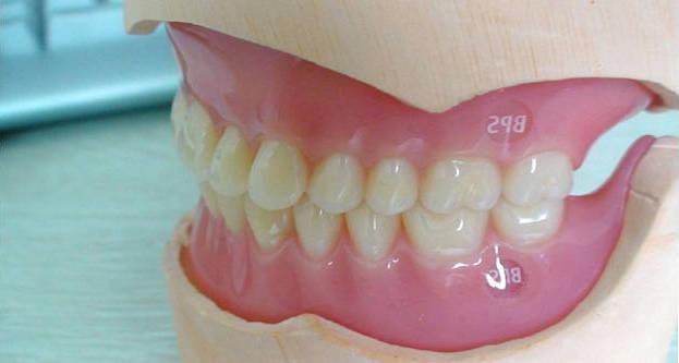 Покрывной зубной протез по системе BPS