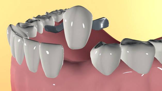 Адгезивный зубной протез