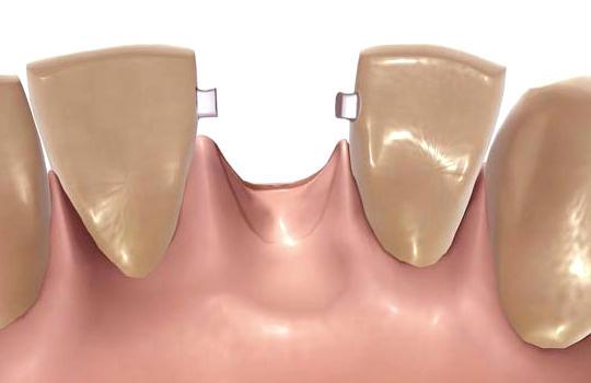 Протезирование зубов на микрозамках
