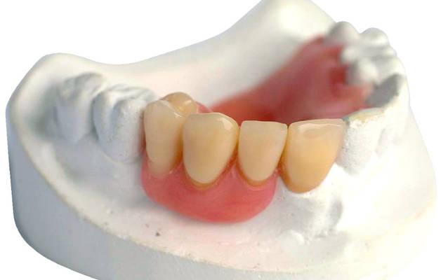 Частичный съемный акриловый зубной протез
