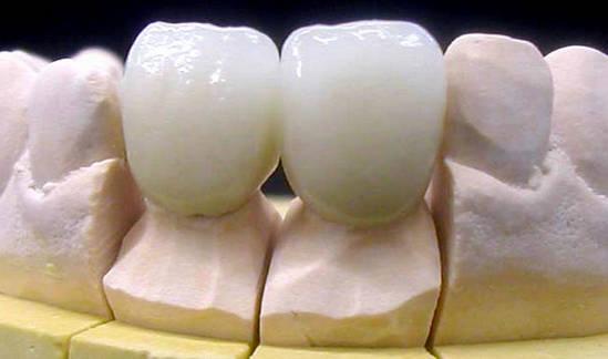 Металлокерамические коронки на передних зубах