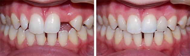 Фото до и после установки адгезивного мостовидного протеза