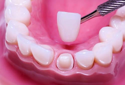 Установка керамической коронки на обточенный зуб