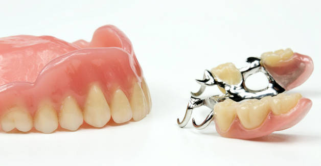 Какие виды зубных протезов бывают