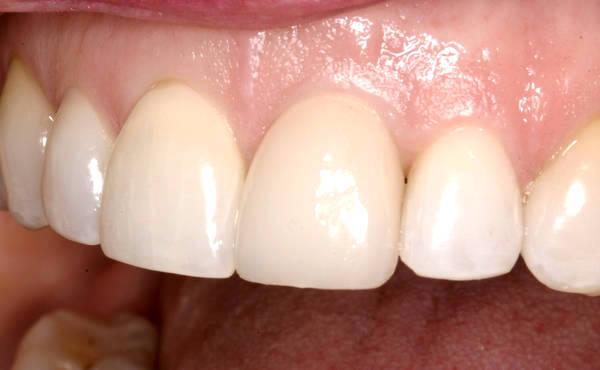 Протезирование передних зубов коронками