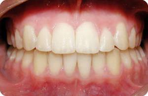 Глубокий прикус: фото после лечения