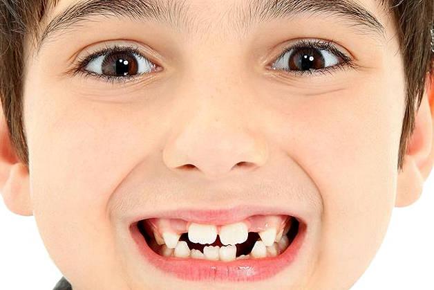 Сроки прорезывания коренных зубов