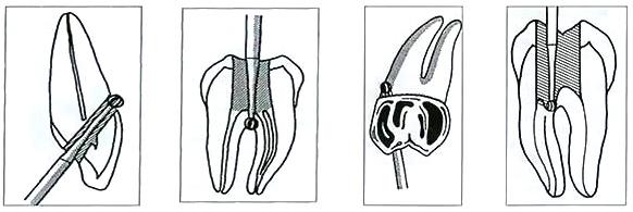 Восстановление перфорации корня зуба