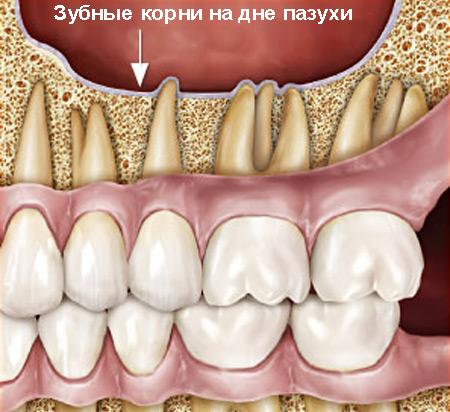 Корни зубов у дна верхнечелюстной пазухи