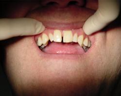 Фото 1. Диастема — щель между передними зубами