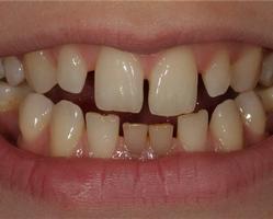 Фото 2. Тремы — промежутки между зубами
