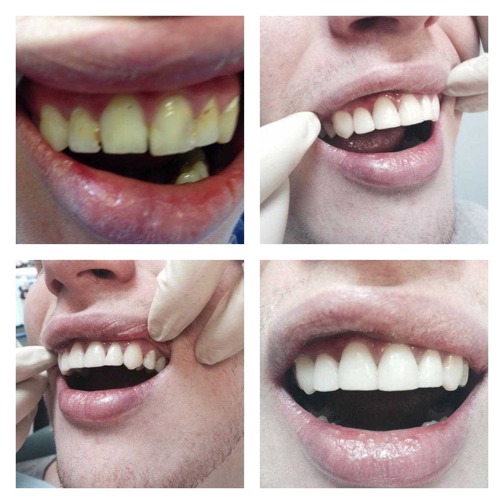 Передние зубы как лучше сделать
