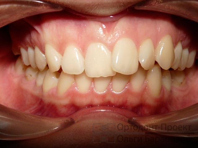 Зубные пасты которые действительно могут отбеливать зубы