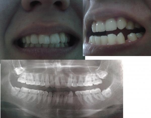 Можно ли на один зуб ставить брекеты