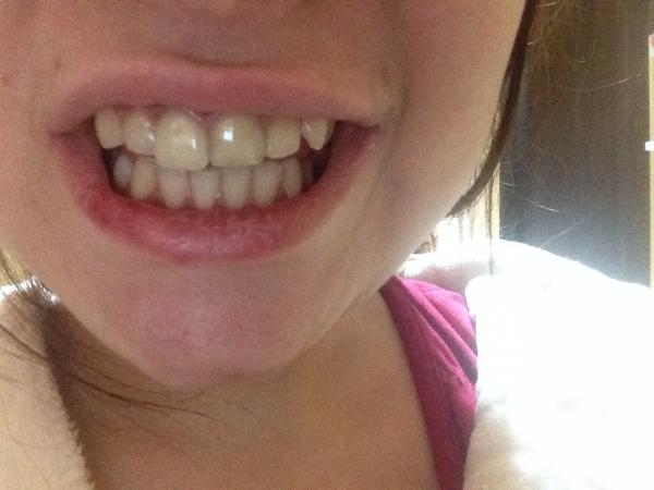 отзывы о винирах на зубы топ шоп