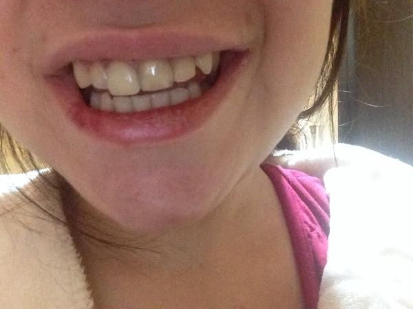 вставные зубы виниры