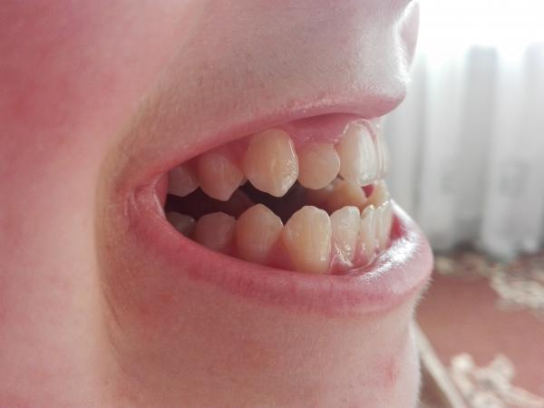 как сделать зубы красивыми и ровными